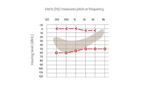 Audiogram example
