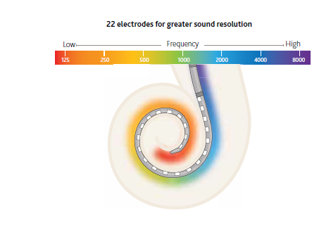 22+electrodes+for+greater+sound+resolution.png