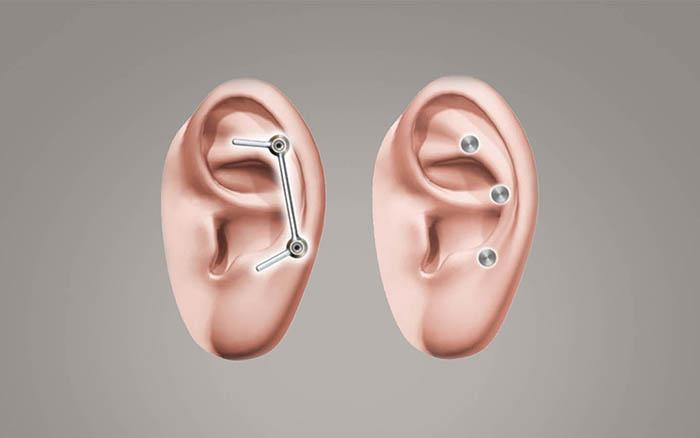 ID1-Cochlear-Vistafix-System.jpg