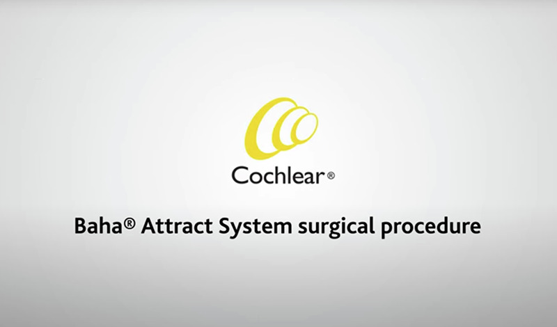 Baha-Attract-Surgical-Video.png